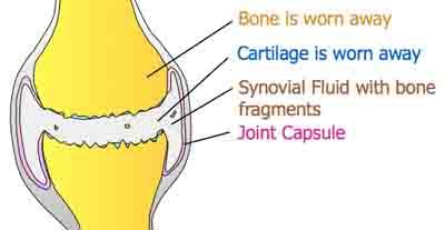 osteoarthritis joint diagram - 400px x 207px