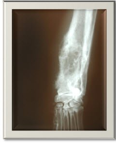 canine osteosarcoma treatment