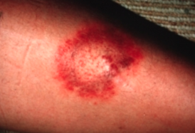 picture of lyme disease in dogs