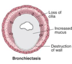 illustration of canine chronic bronchitis symptoms
