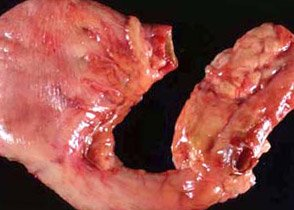 Dog Stomach Cancer - Mast Cell Tumor
